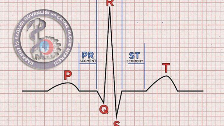 EKG Elektrokardiyogram