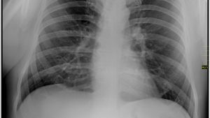 Akciğer Radyolojisi